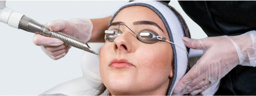 woman under juliet skin resurfacing laser