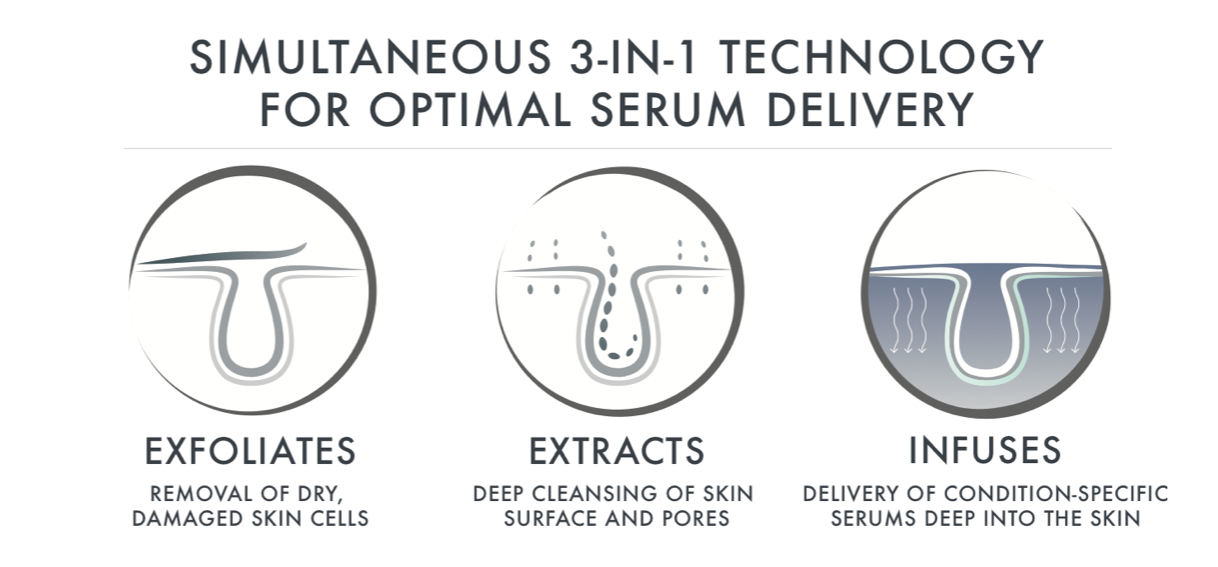 3-in-1 skincare technology that exfoliates, extracts, and infuses of skin
